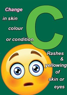 C = Change in skin colour or condition